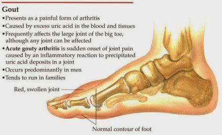 Set Gout Shaklee Sebagai Alternatif Rawatan Untuk Gout