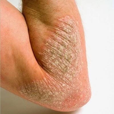 Alergik ataupun Gatal-Gatal Hinggakan Kulit Sudah Kering Bersisik? Set Shaklee ada Penyelesaian.