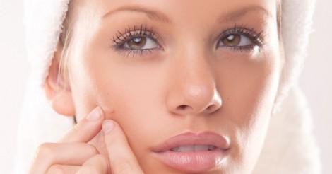 Muka berjerawat menunjukkan sistem dalaman badan tidak sihat
