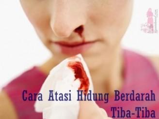 Cara atasi hidung berdarah tiba-tiba