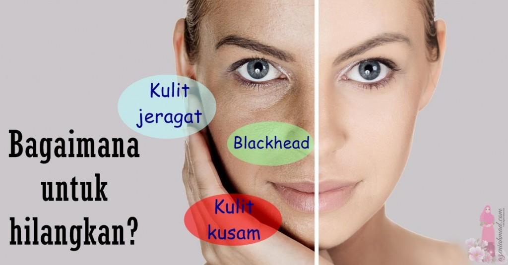 cara hilangkan kulit jeragat, kulit kusam dan blackhead