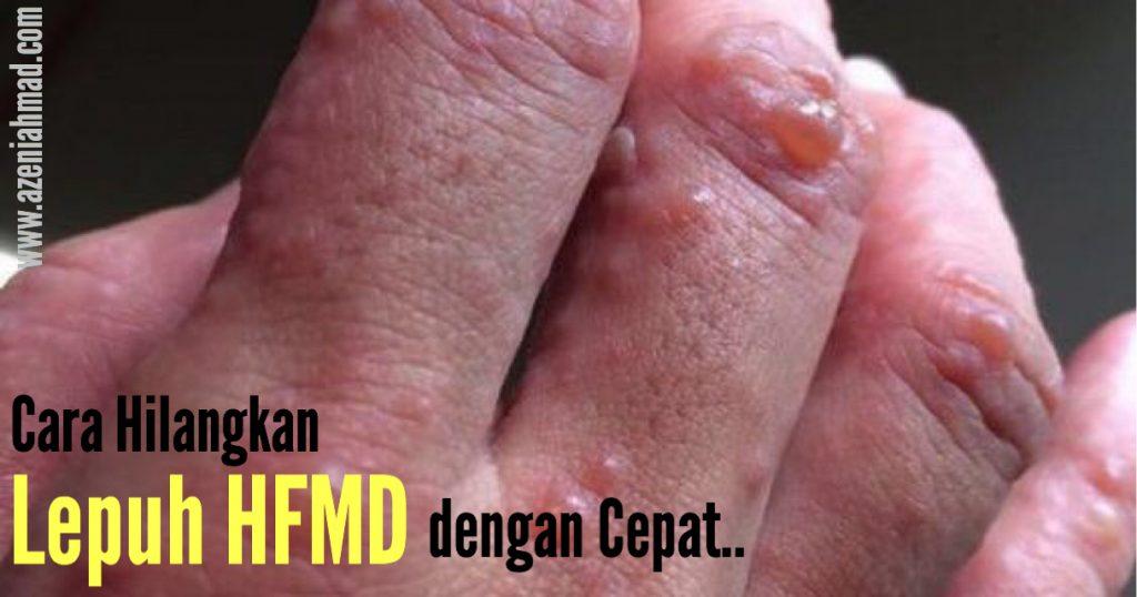 Cara rawat lepuh HFMD dengan cepat